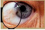 Tobacco Eye Irritation
