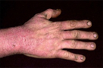 Tobacco Skin Irritations